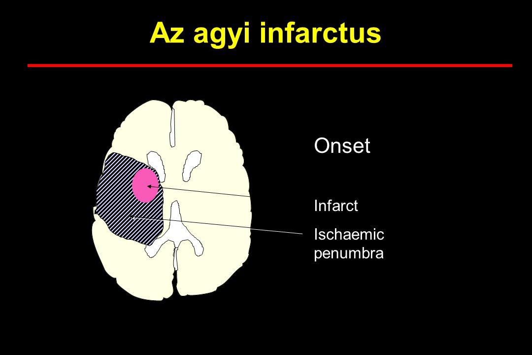 Az agyi infarctus Onset Infarct Ischaemic penumbra