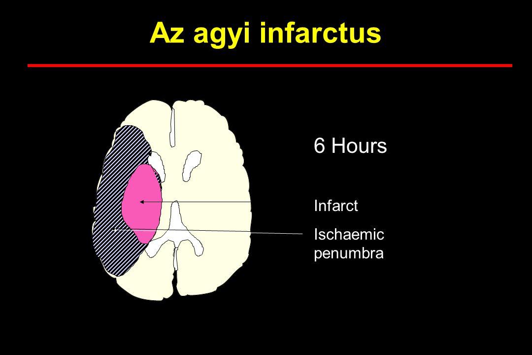 Az agyi infarctus 6 Hours Infarct Ischaemic penumbra