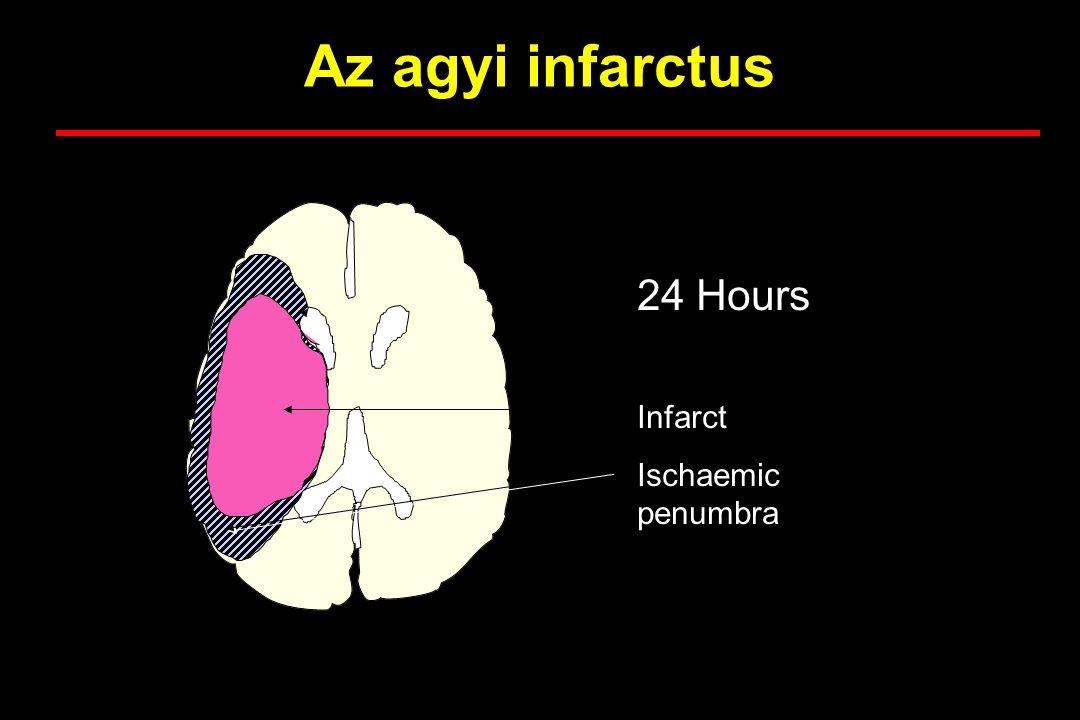 Az agyi infarctus 24 Hours Infarct Ischaemic penumbra