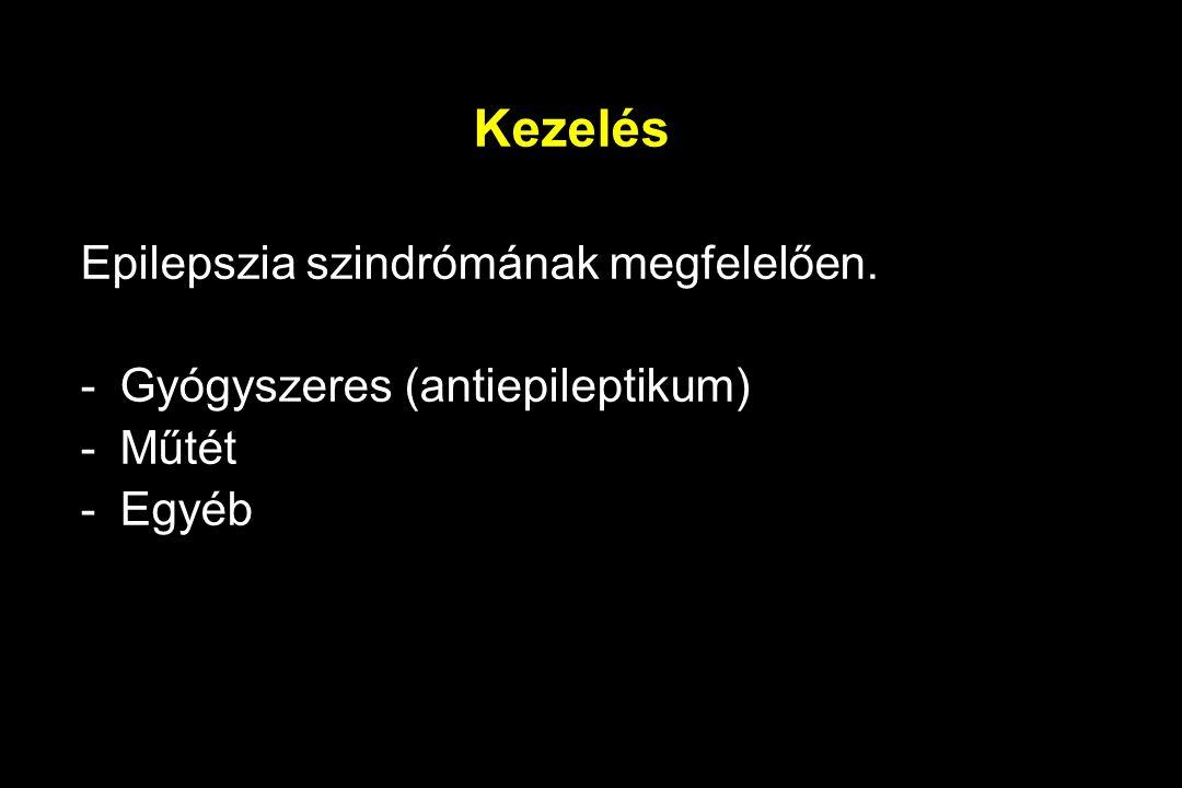 Kezelés Epilepszia szindrómának megfelelően.