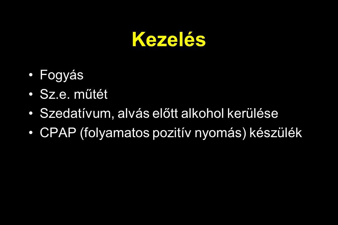 Kezelés Fogyás Sz.e. műtét Szedatívum, alvás előtt alkohol kerülése