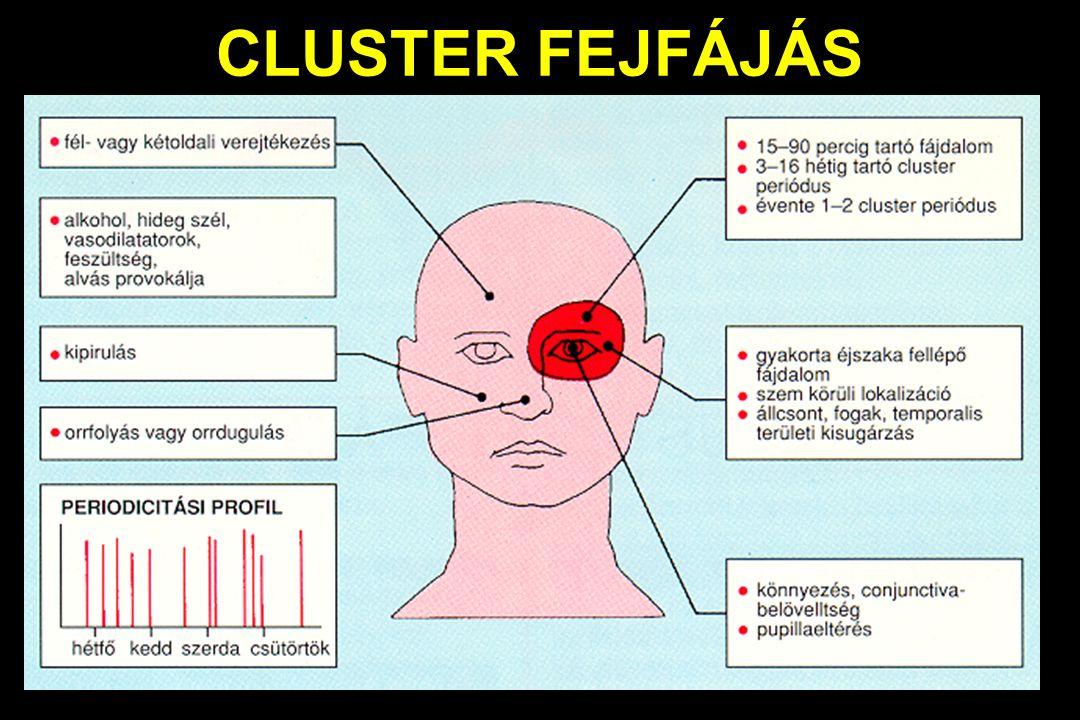 CLUSTER FEJFÁJÁS
