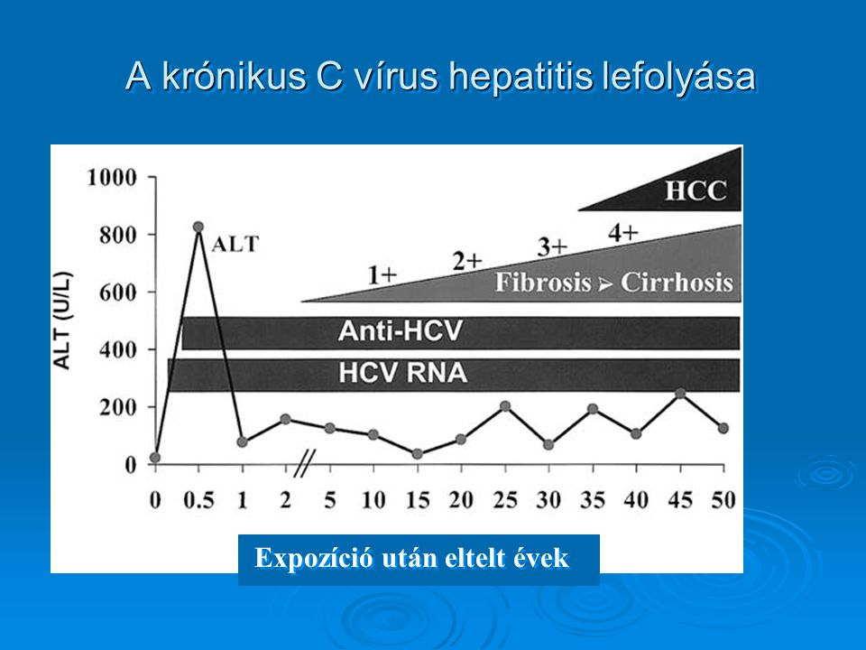 A krónikus C vírus hepatitis lefolyása