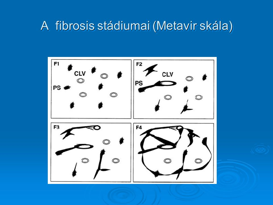 A fibrosis stádiumai (Metavir skála)