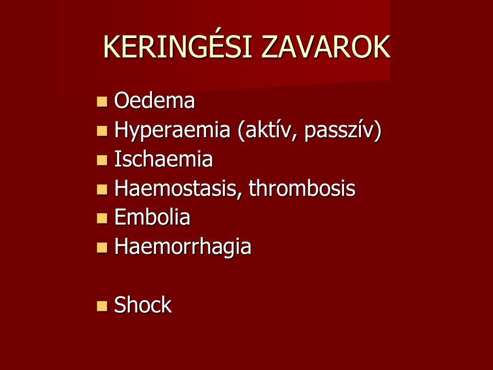 KERINGÉSI ZAVAROK Oedema Hyperaemia (aktív, passzív) Ischaemia