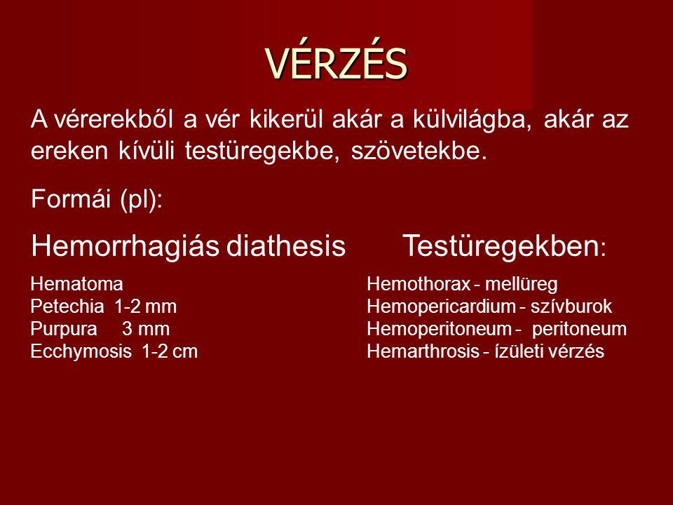 VÉRZÉS Hemorrhagiás diathesis Testüregekben: