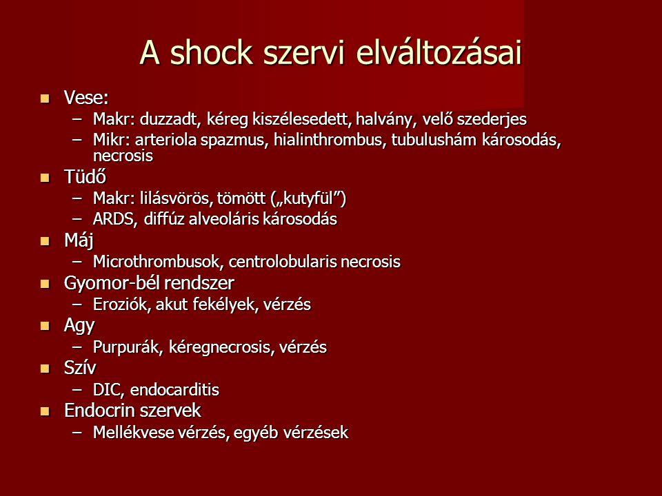 A shock szervi elváltozásai