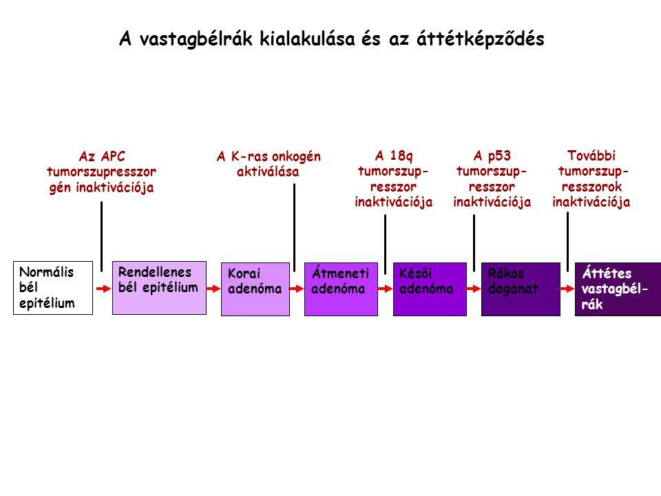 A vastagbélrák kialakulása és az áttétképződés