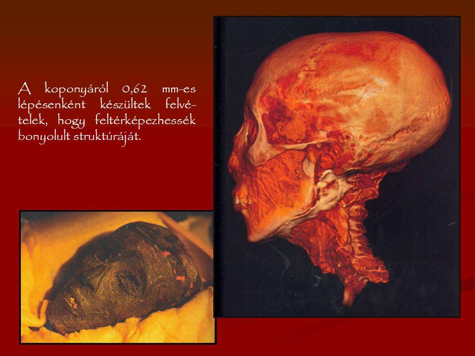 A koponyáról 0,62 mm-es lépésenként készültek felvé-telek, hogy feltérképezhessék bonyolult struktúráját.