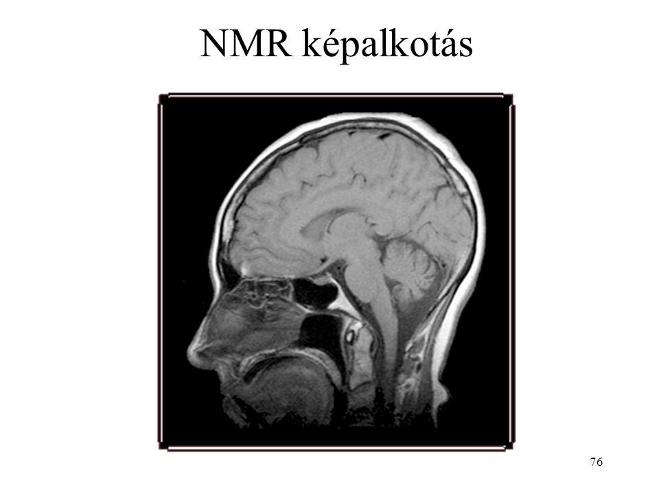 NMR képalkotás