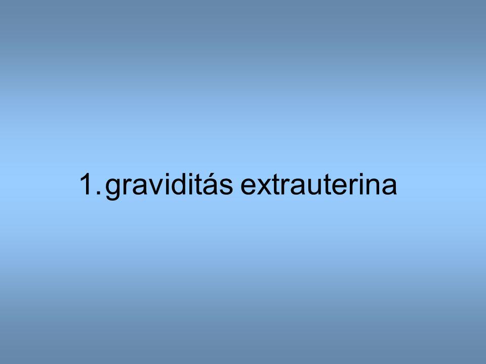 graviditás extrauterina