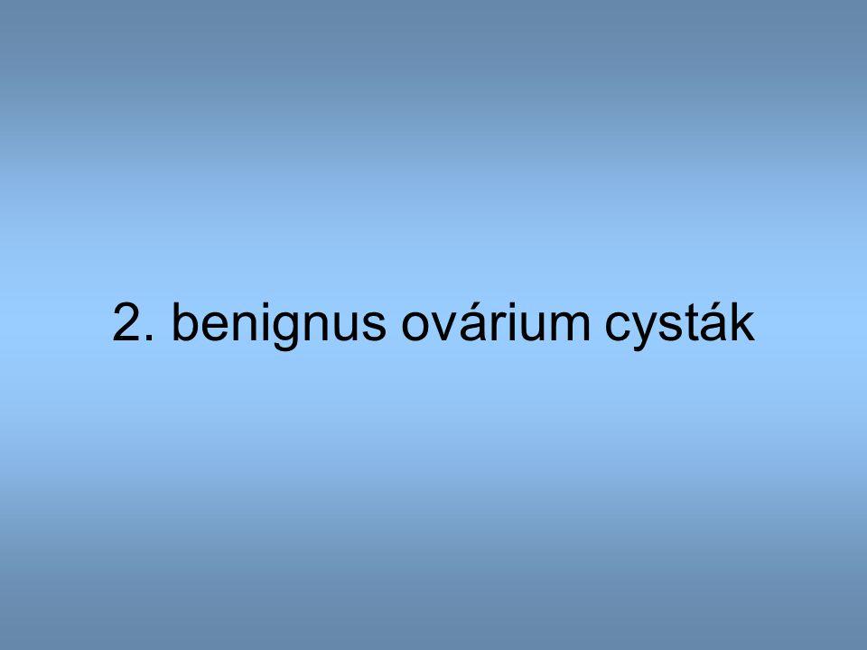 2. benignus ovárium cysták