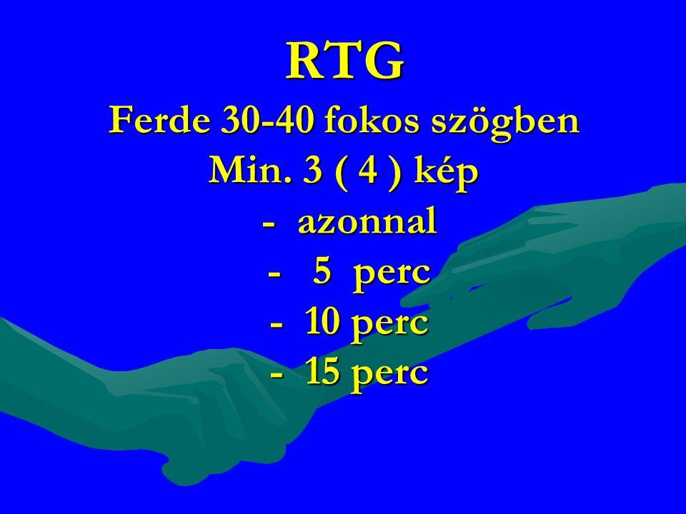 RTG Ferde 30-40 fokos szögben Min
