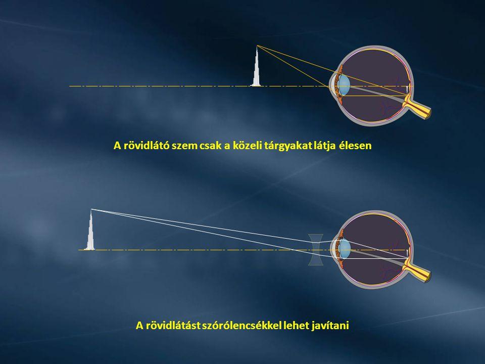 A rövidlátó szem csak a közeli tárgyakat látja élesen