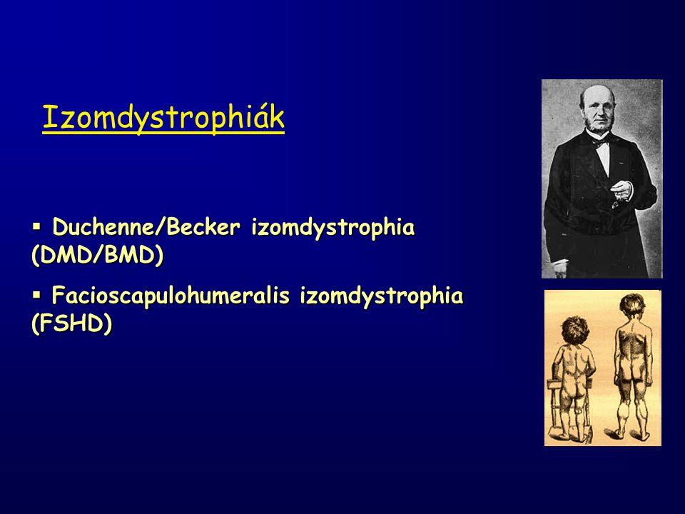 Izomdystrophiák Duchenne/Becker izomdystrophia (DMD/BMD)