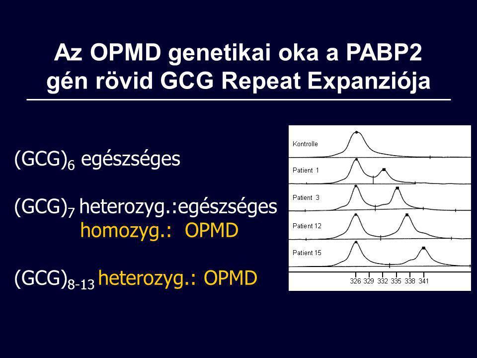 Az OPMD genetikai oka a PABP2 gén rövid GCG Repeat Expanziója