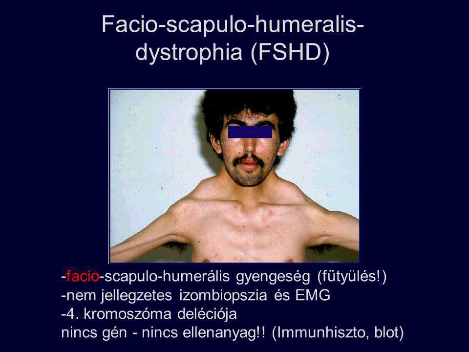 Facio-scapulo-humeralis- dystrophia (FSHD)