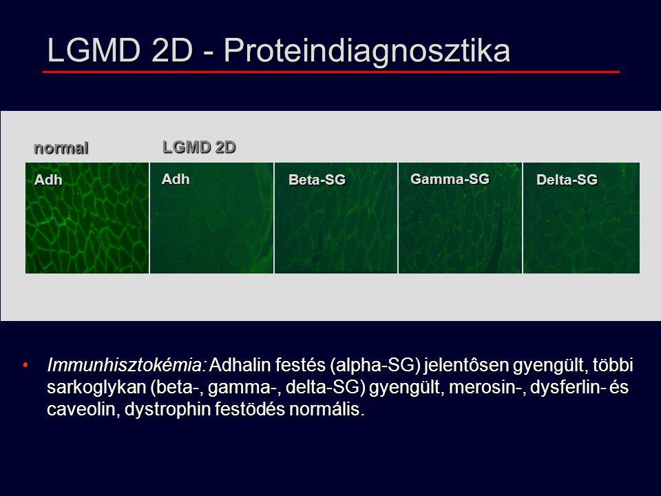 LGMD 2D - Proteindiagnosztika