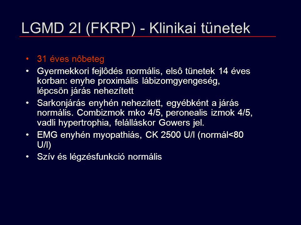 LGMD 2I (FKRP) - Klinikai tünetek