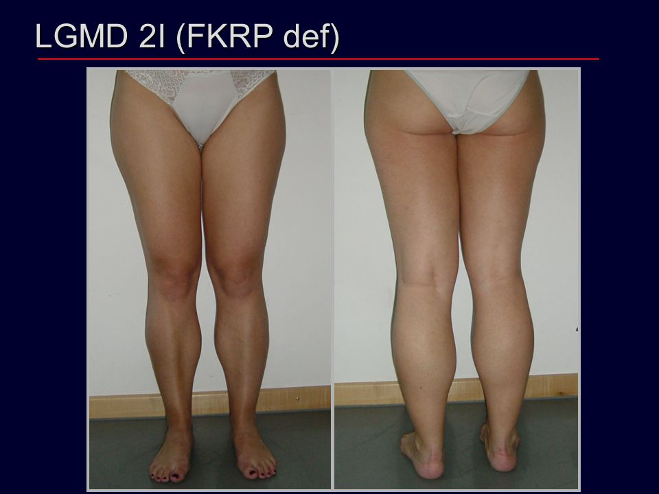 LGMD 2I (FKRP def)