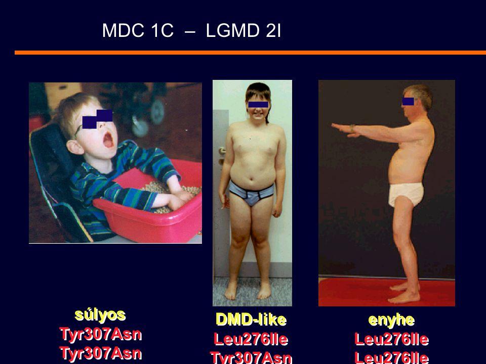 MDC 1C – LGMD 2I súlyos Tyr307Asn DMD-like Leu276Ile Tyr307Asn enyhe