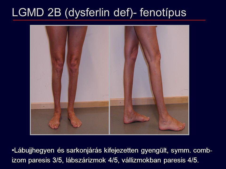 LGMD 2B (dysferlin def)- fenotípus