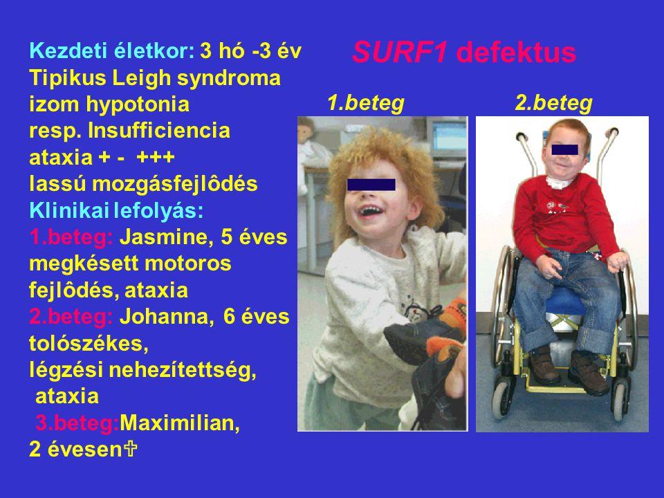 SURF1 defektus Kezdeti életkor: 3 hó -3 év Tipikus Leigh syndroma