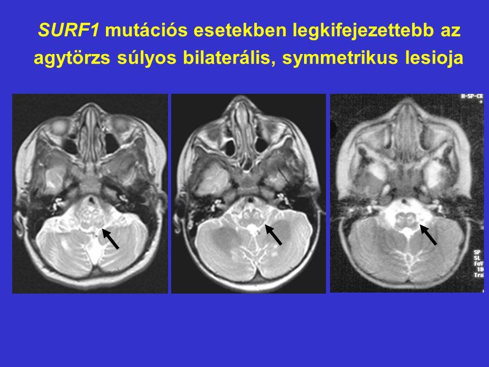 SURF1 mutációs esetekben legkifejezettebb az agytörzs súlyos bilaterális, symmetrikus lesioja