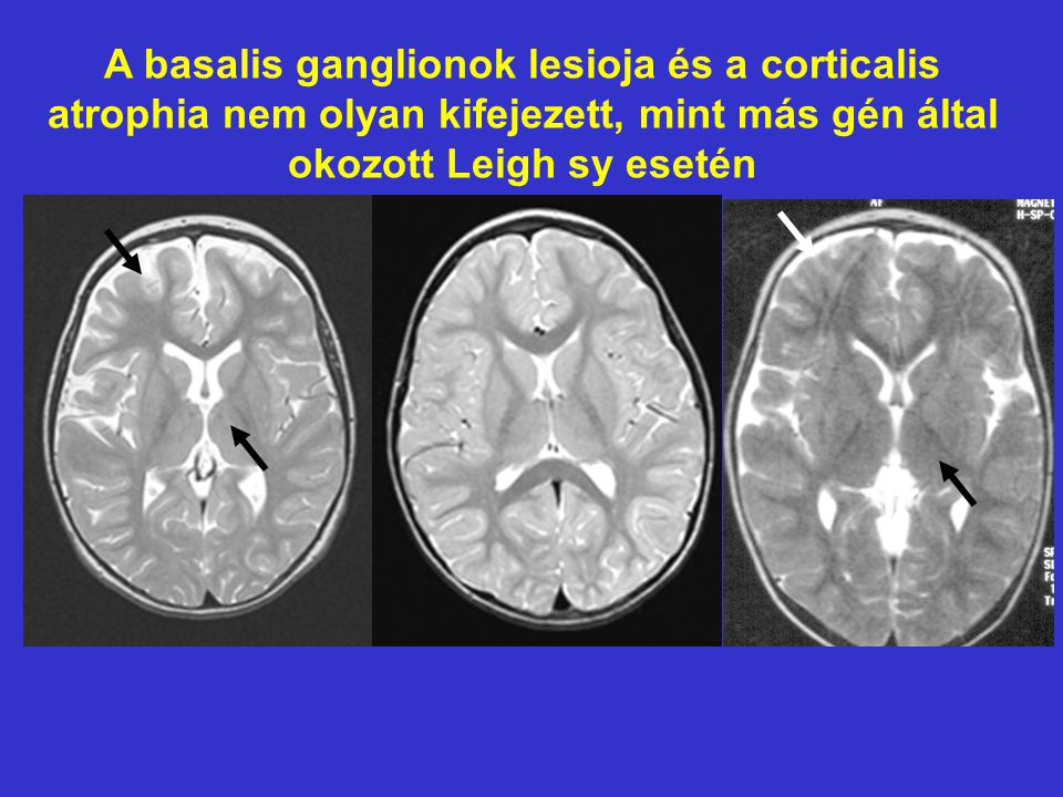 A basalis ganglionok lesioja és a corticalis atrophia nem olyan kifejezett, mint más gén által okozott Leigh sy esetén