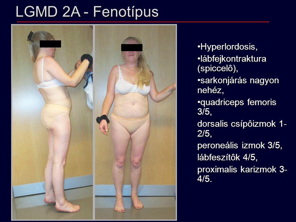 LGMD 2A - Fenotípus Hyperlordosis, lábfejkontraktura (spiccelô),