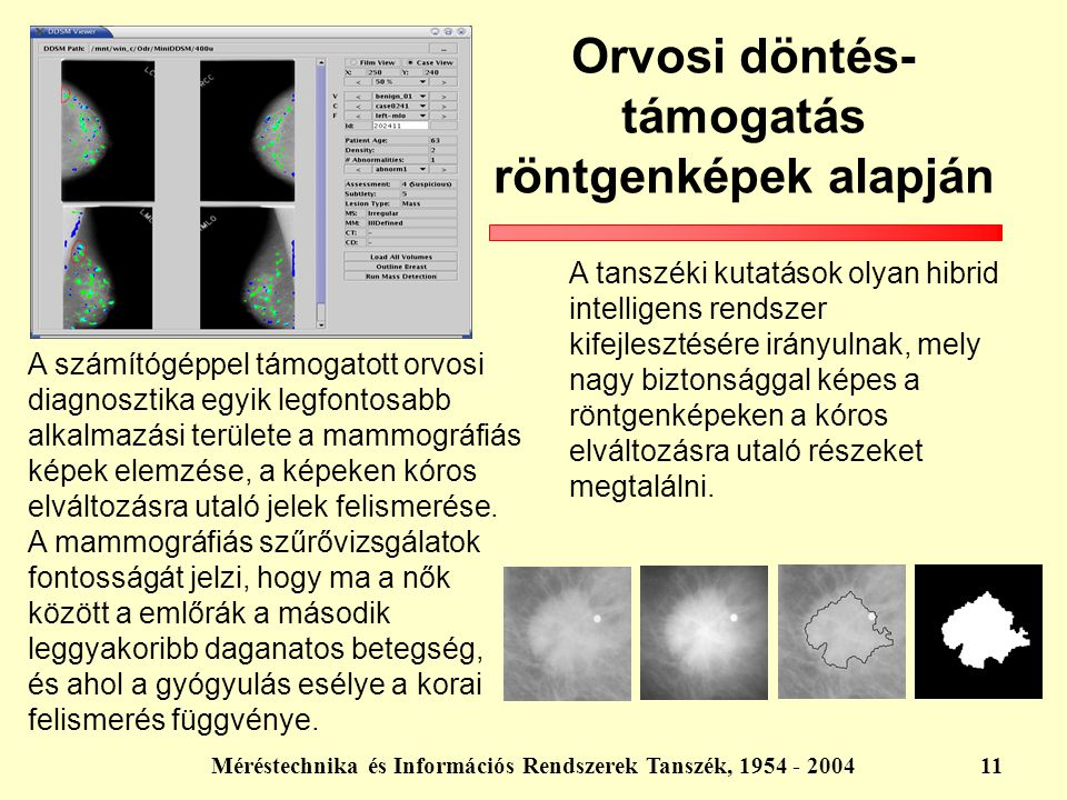 Orvosi döntés- támogatás röntgenképek alapján