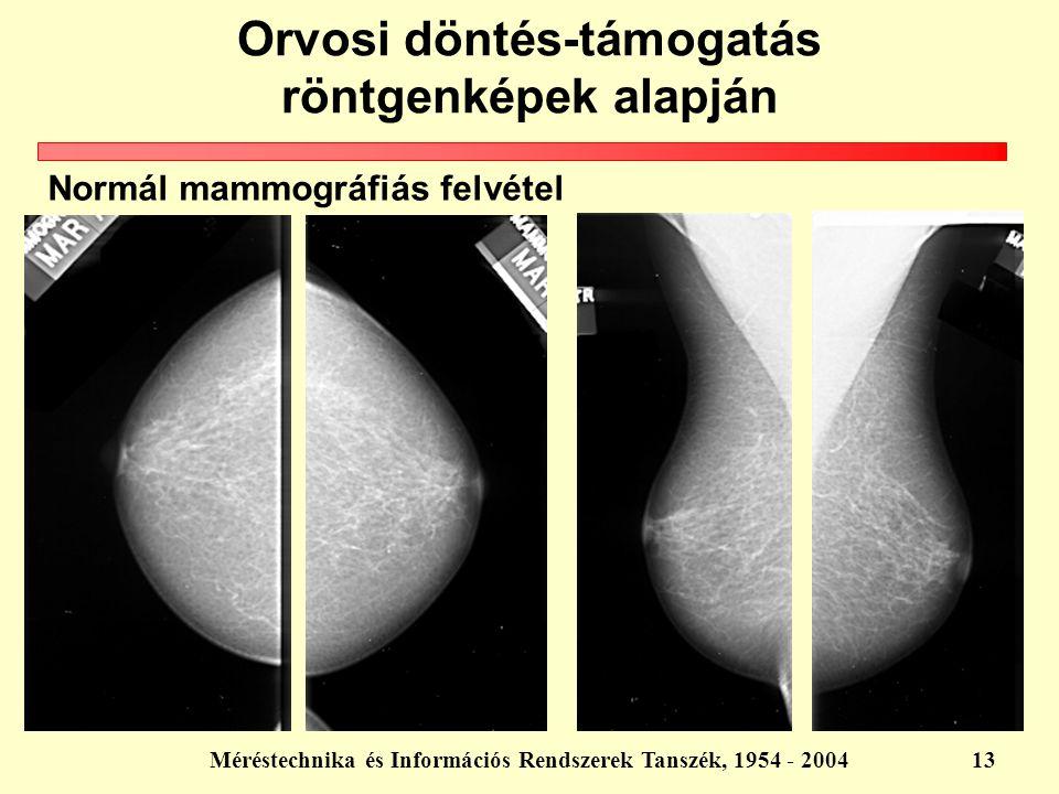 Orvosi döntés-támogatás röntgenképek alapján