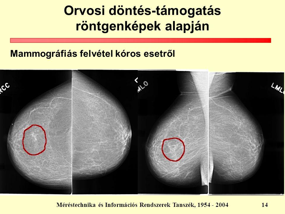Mammográfiás felvétel kóros esetről