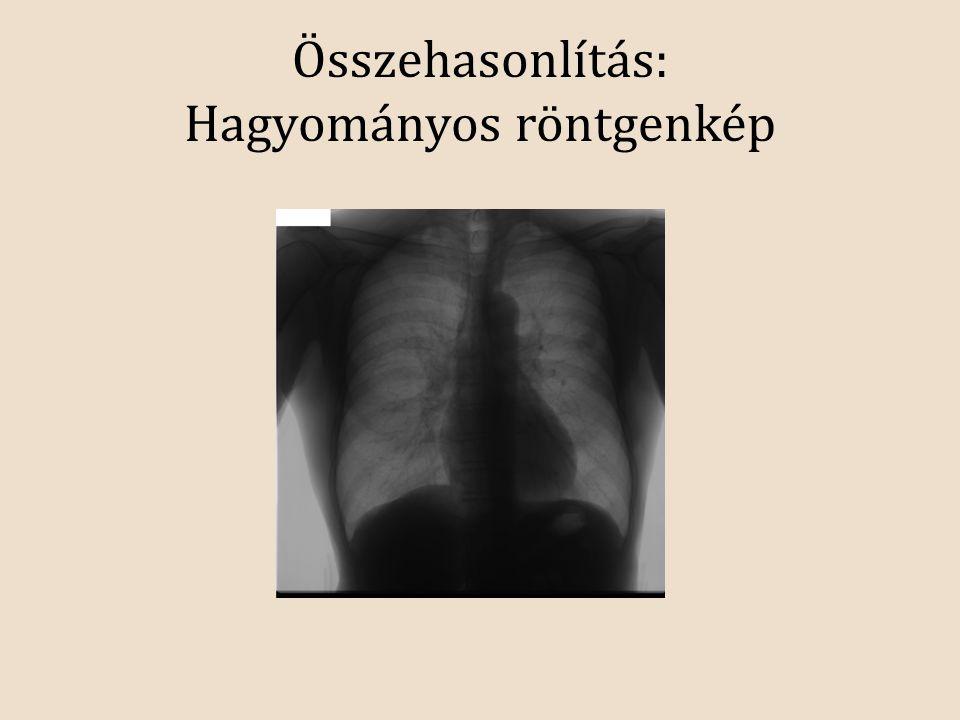 Összehasonlítás: Hagyományos röntgenkép