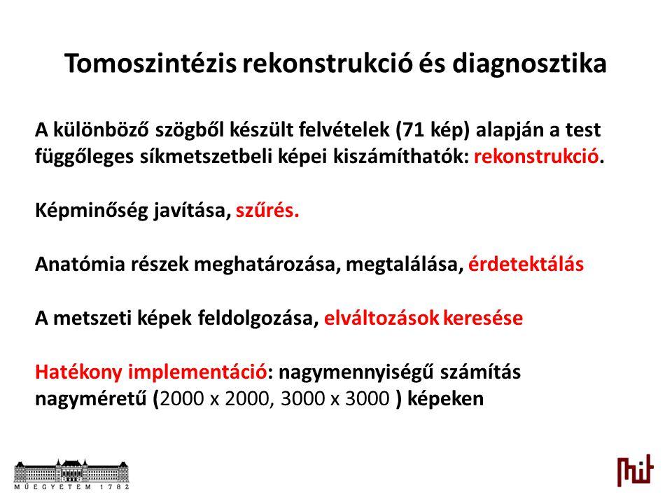 Tomoszintézis rekonstrukció és diagnosztika