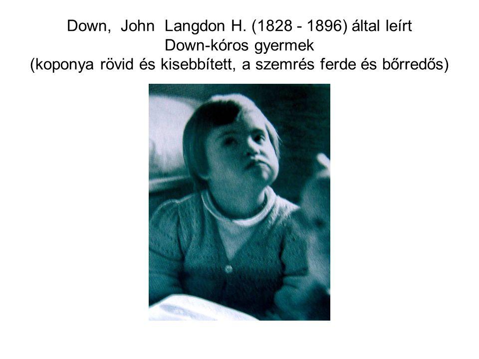 Down, John Langdon H.