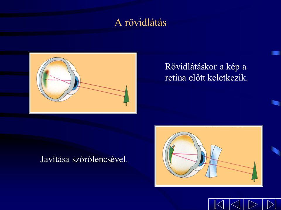 A rövidlátás Rövidlátáskor a kép a retina előtt keletkezik.