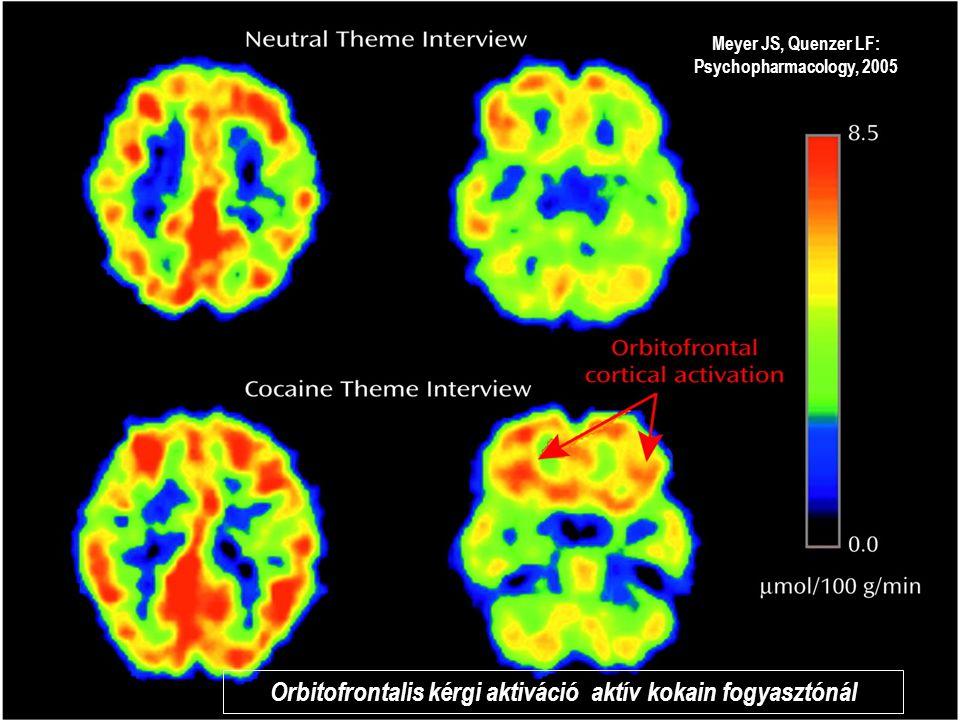 Orbitofrontalis kérgi aktiváció aktív kokain fogyasztónál