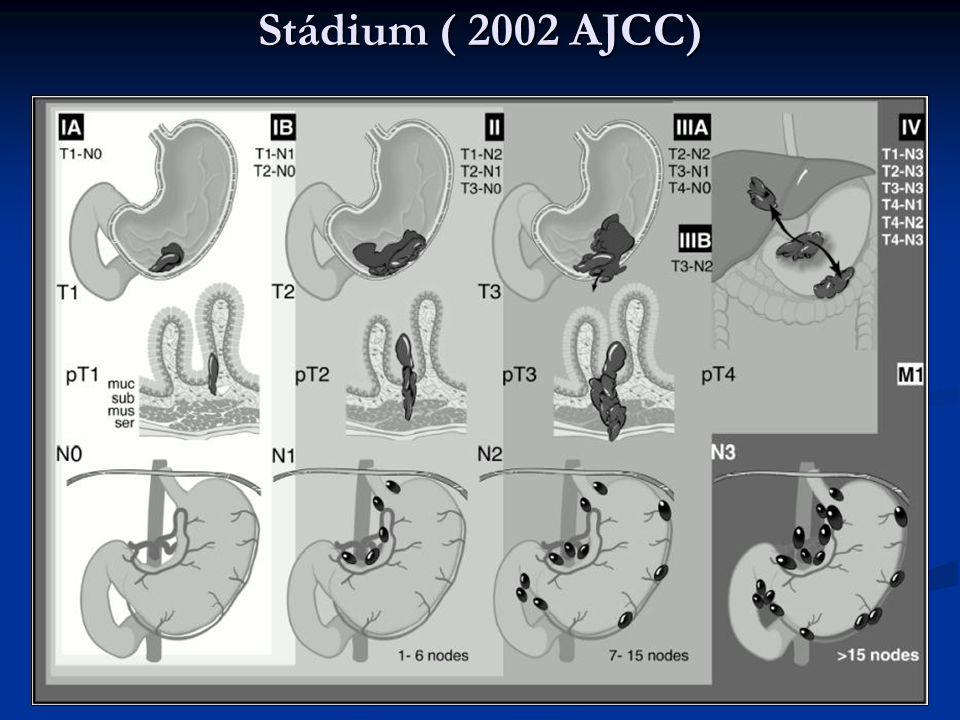 Stádium ( 2002 AJCC)