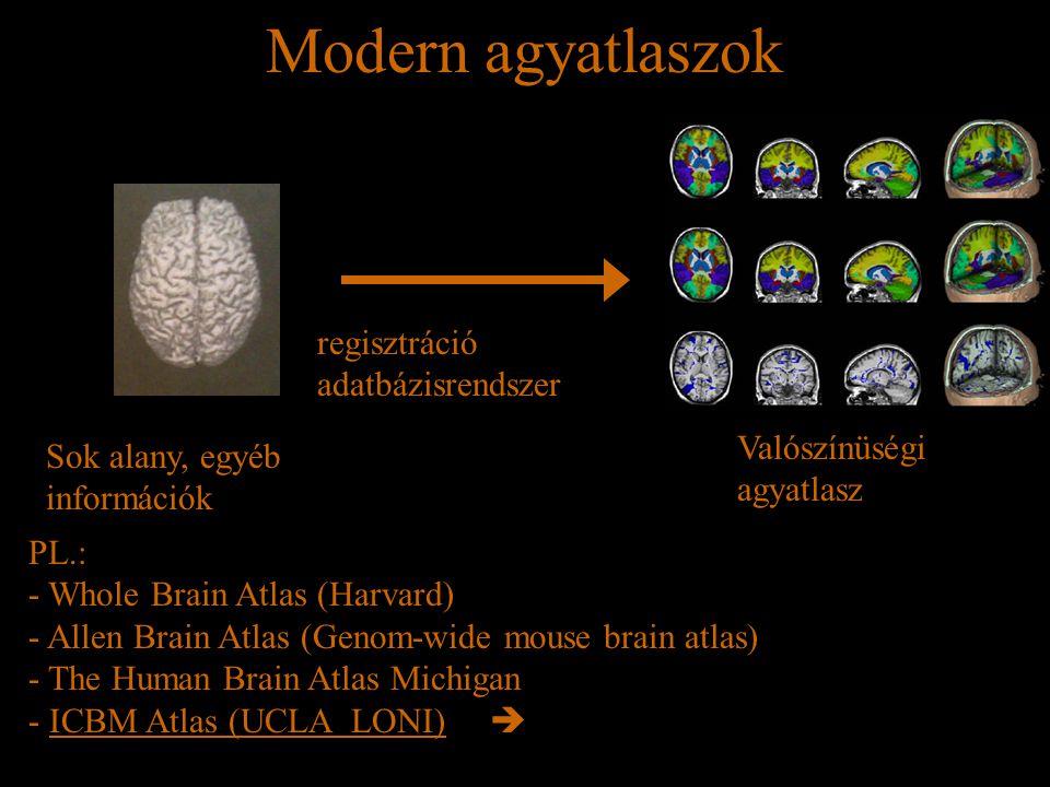 Modern agyatlaszok regisztráció adatbázisrendszer