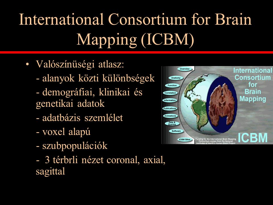 International Consortium for Brain Mapping (ICBM)