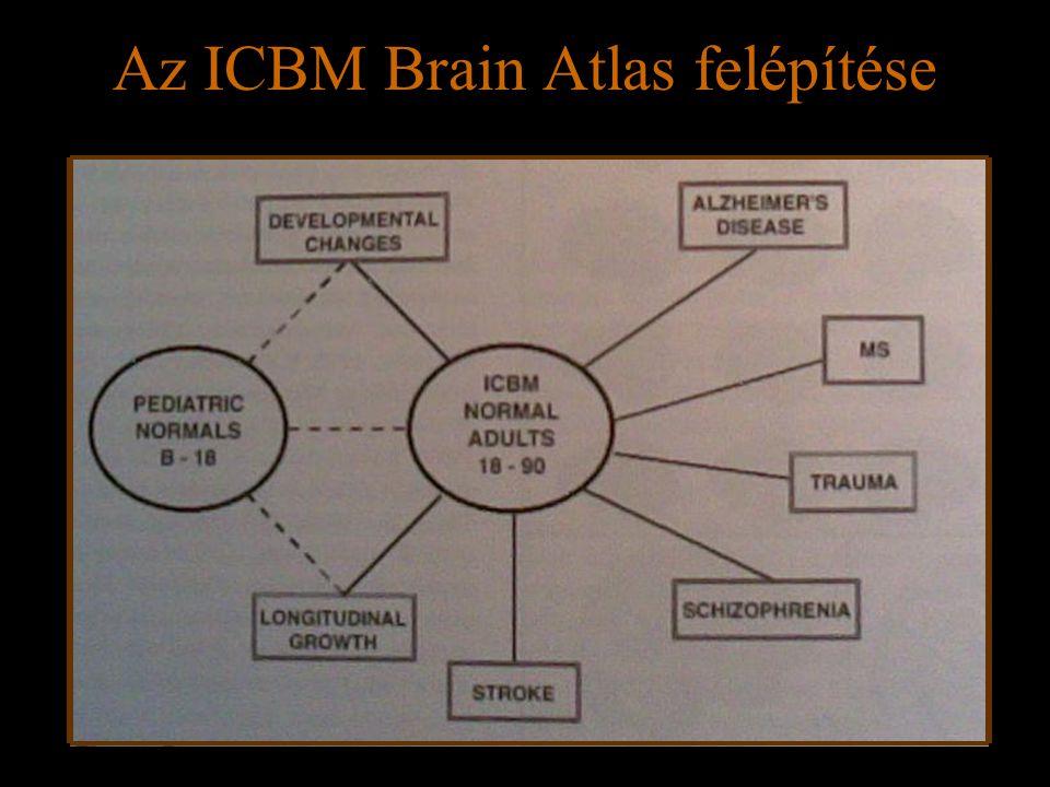Az ICBM Brain Atlas felépítése