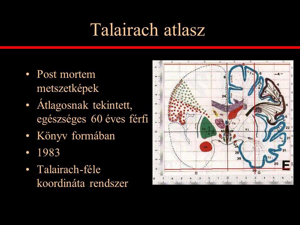Talairach atlasz Post mortem metszetképek