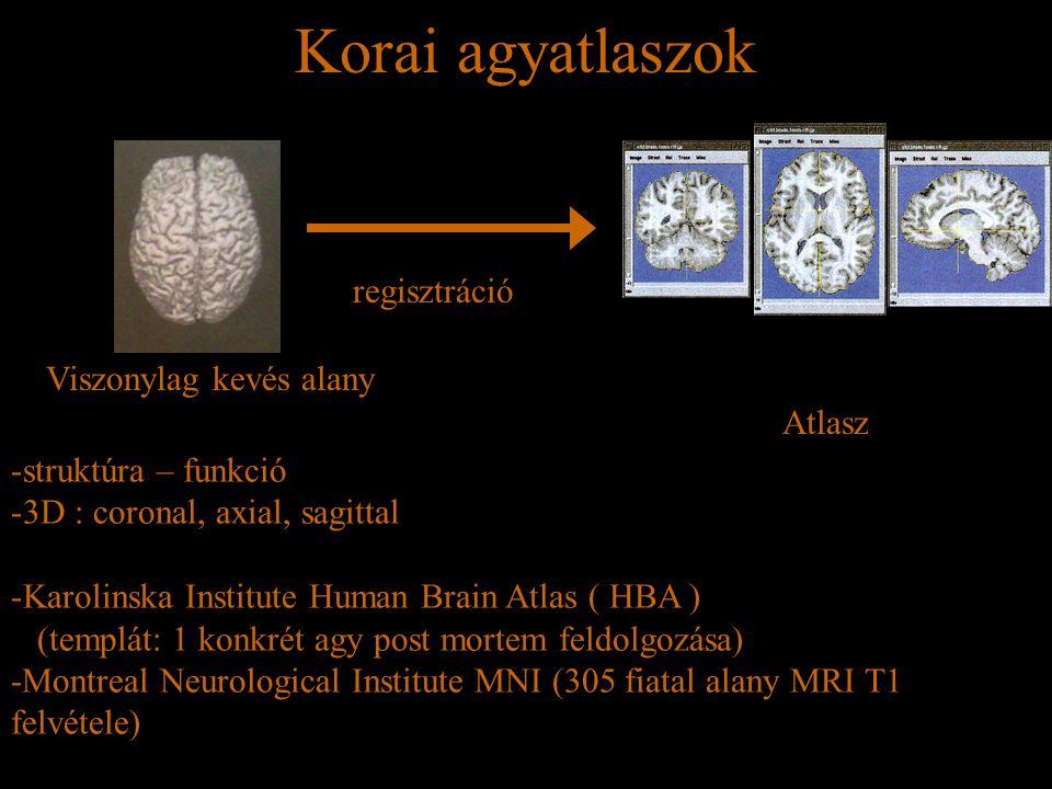 Korai agyatlaszok regisztráció Viszonylag kevés alany Atlasz