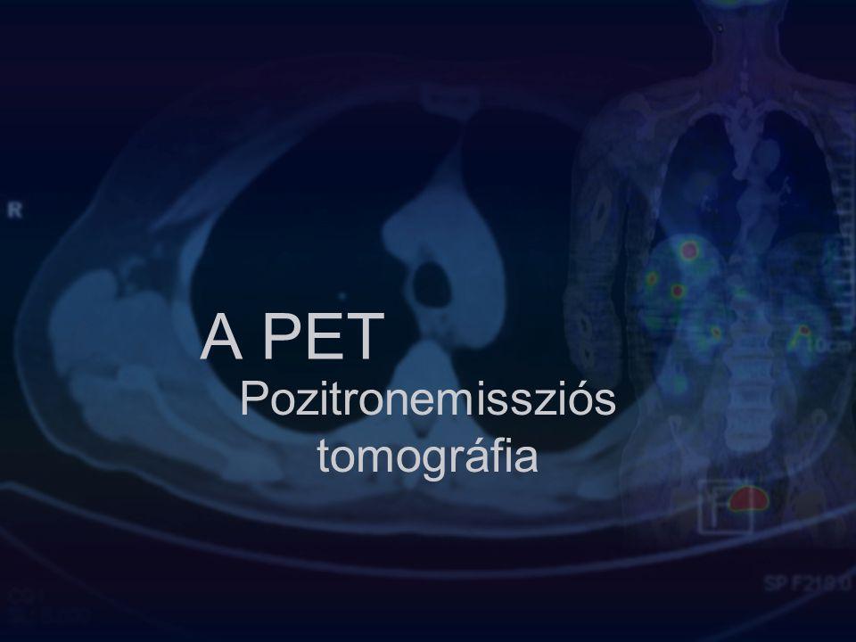 Pozitronemissziós tomográfia