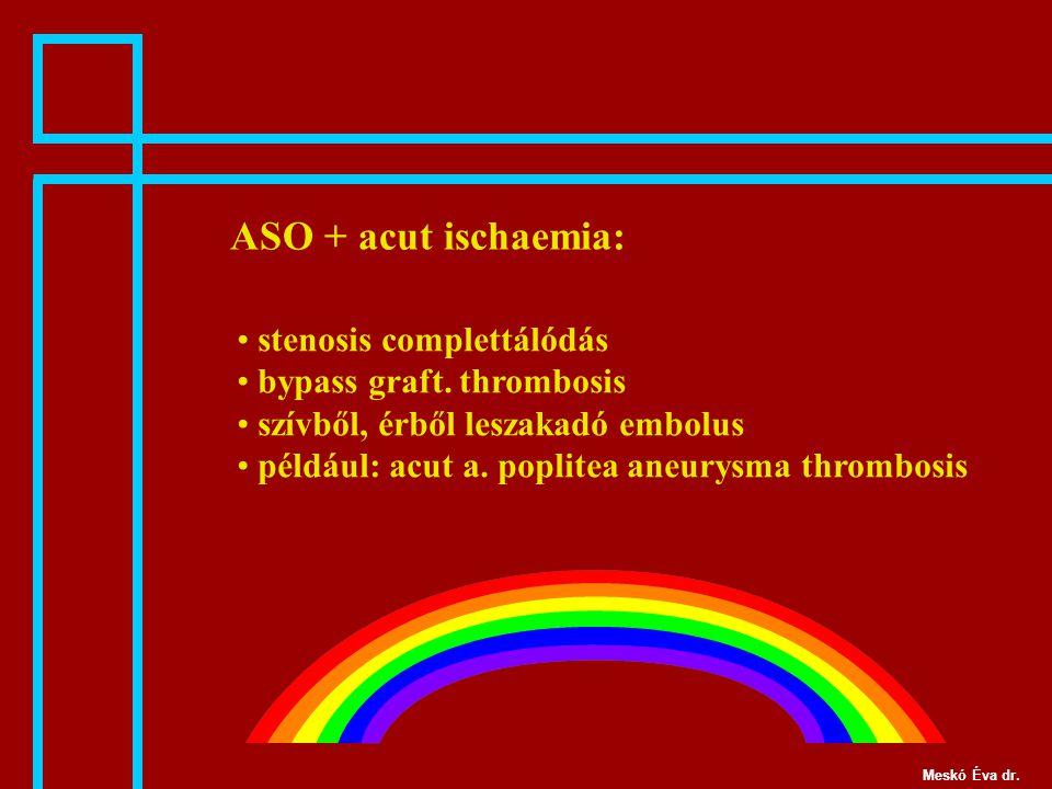 ASO + acut ischaemia: stenosis complettálódás bypass graft. thrombosis