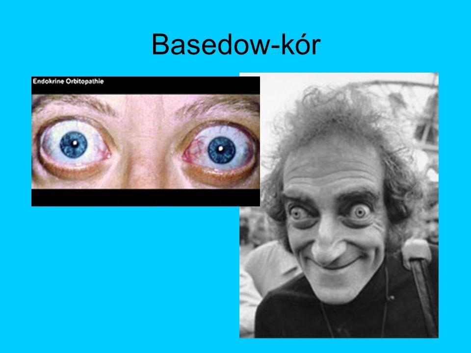 Basedow-kór