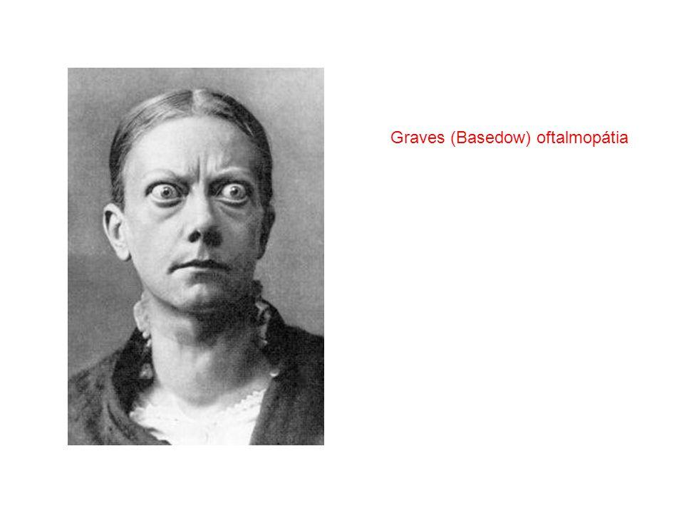 Graves (Basedow) oftalmopátia