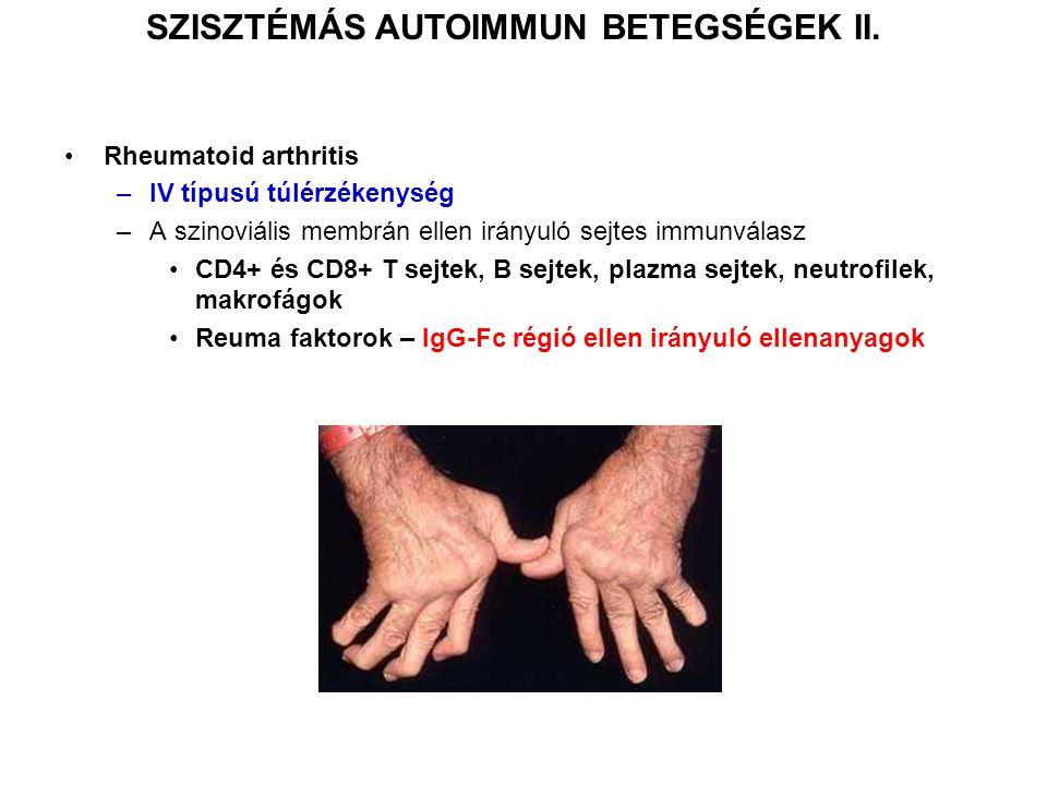 SZISZTÉMÁS AUTOIMMUN BETEGSÉGEK II.