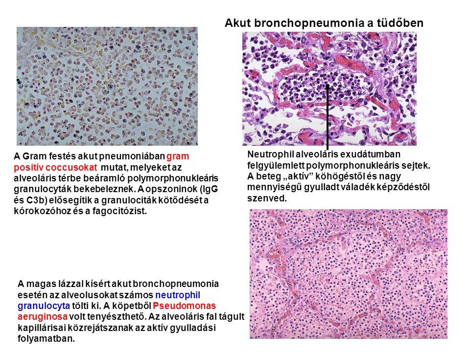 Akut bronchopneumonia a tüdőben